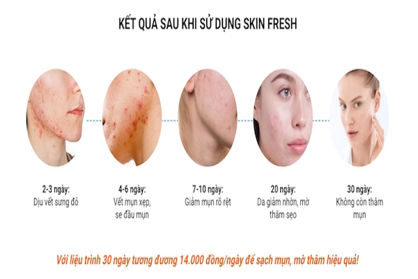 Skin Fresh - Cách trị mụn bọc đơn giản, hiệu quả nhất