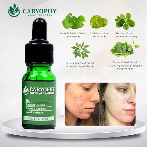 Chăm sóc da mụn bằng sản phẩm trị mụn Caryophy